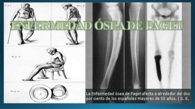 Anatomia enfermedades de los Huesos