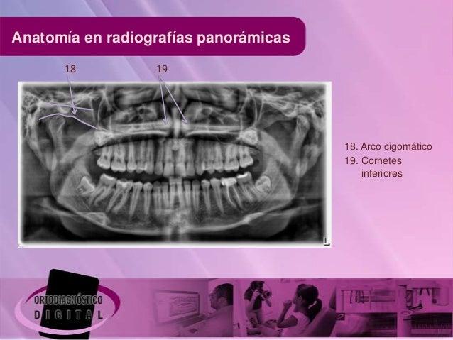 Anatomia en radiografías panorámicas