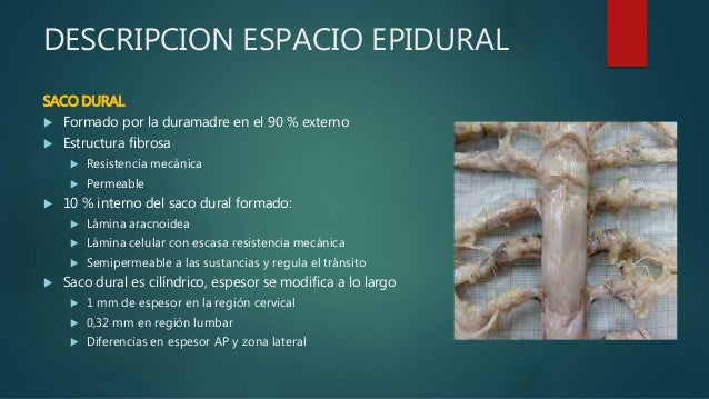 ESPACIO EPIDURAL EPUB DOWNLOAD