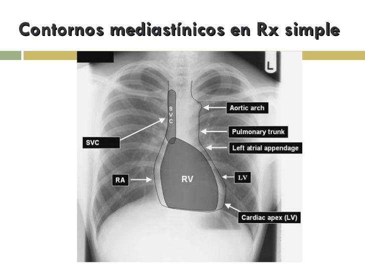 Anatomia Mediastino Slide 3