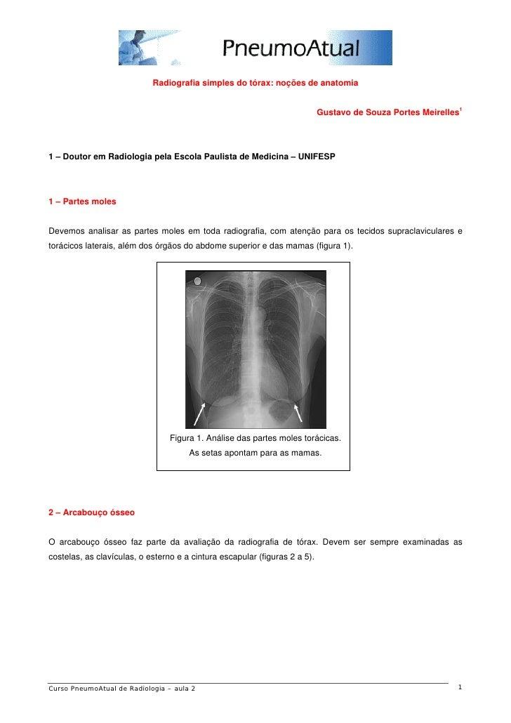 Radiografia simples do tórax: noções de anatomia                                                                          ...