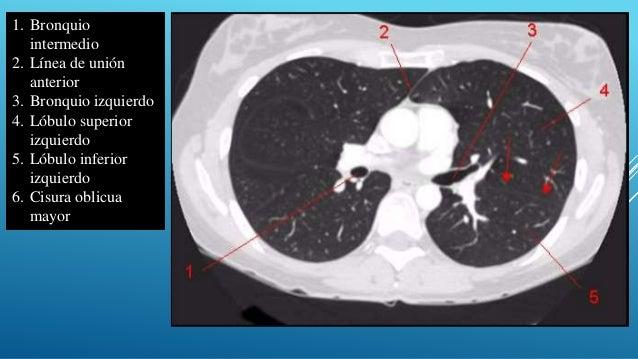 Anatomia por imagen del torax