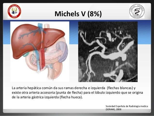 Anatomia quirurgica y descriptiva de higado