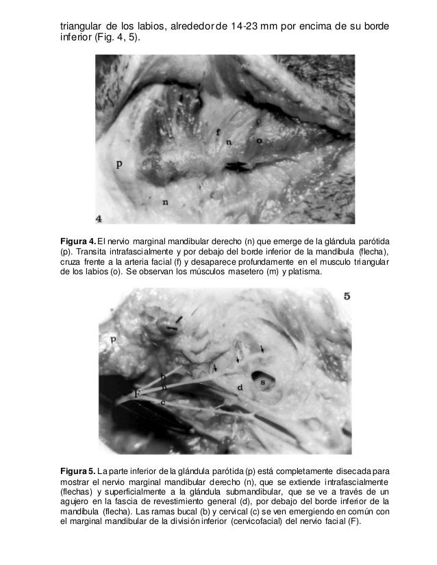 Famoso Anatomía Quirúrgica De La Glándula Parótida Embellecimiento ...