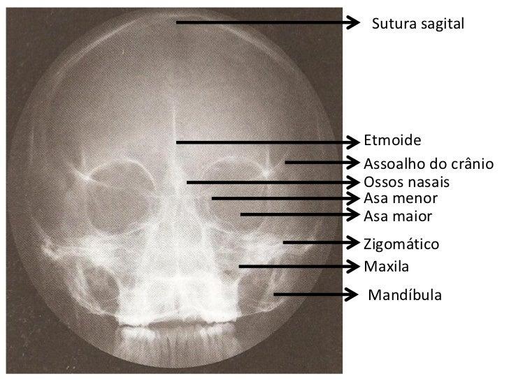 Vistoso Cráneo Radiología Anatomía Embellecimiento - Anatomía de Las ...
