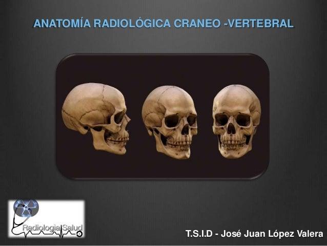 Anatomía Radiológica Craneo Vertebral