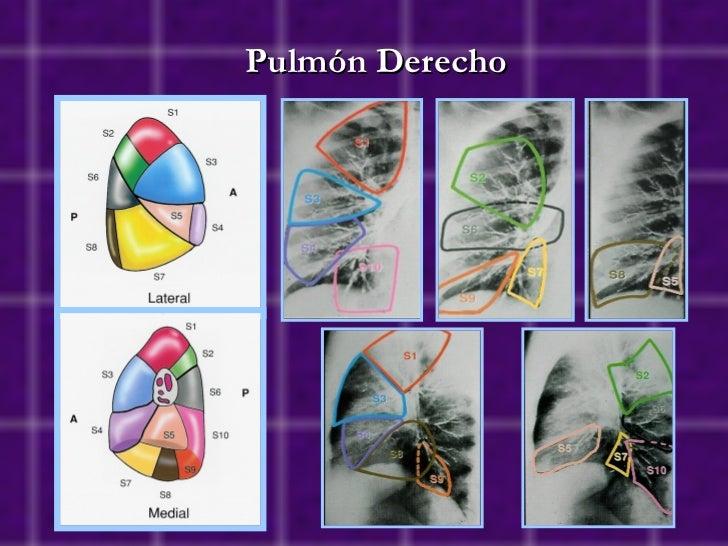 Anatomía seccional: segmentación pulmonar