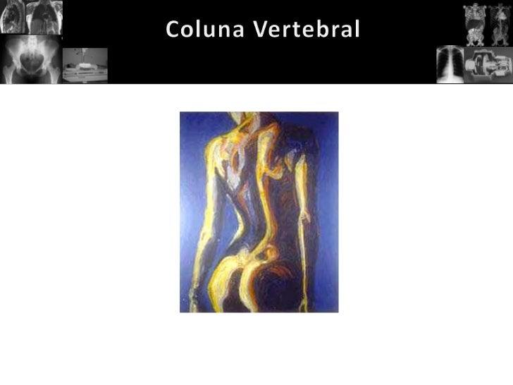 A coluna vertebral desempenha uma papel primordial na estrutura corpórea humana,dentre tantas das suas funções a de susten...