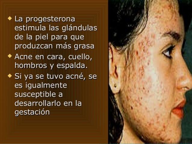 Anatomia y fisiologia de la piel en la