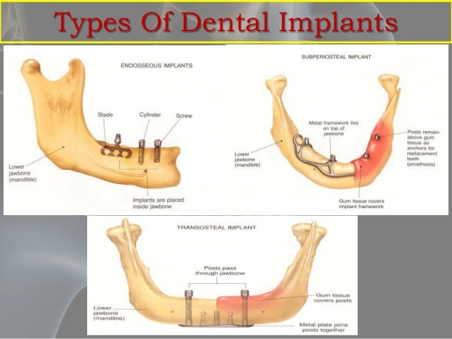 Anatomical Considerations For Dental Implants