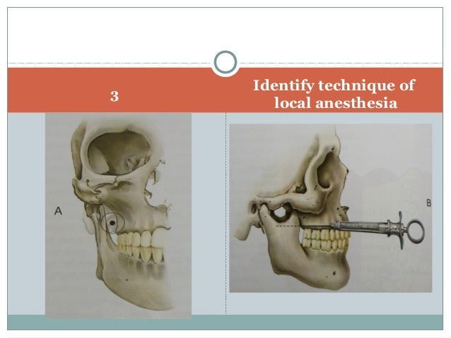 Anatomical correlation of local anesthesia in dentistry
