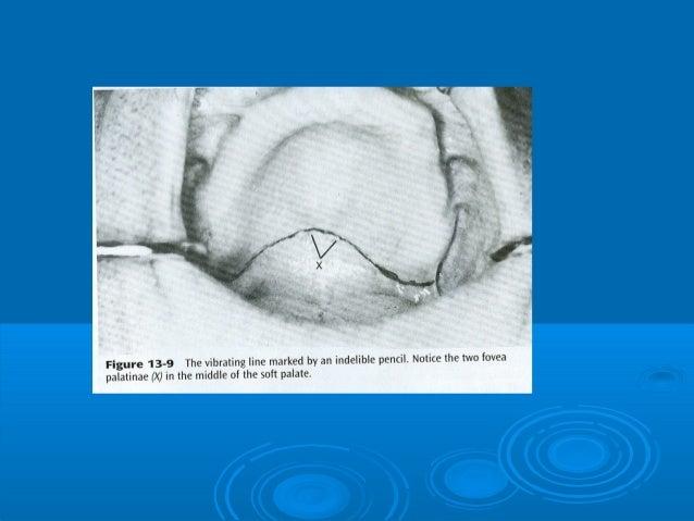 Labial vestibuleLabial vestibule Between labial andBetween labial andbuccal frenumbuccal frenum Support to the lower lip...
