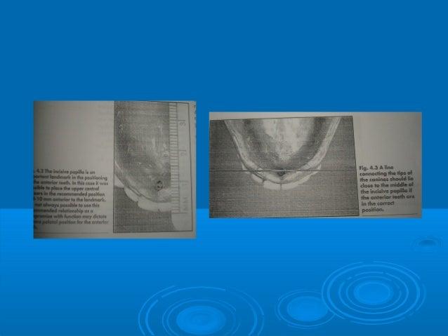 Retromolar pad areaRetromolar pad area Forms the distal end ofForms the distal end ofthe denture.the denture. Consist of...