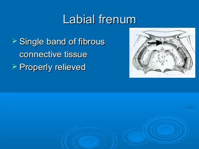 Labial frenumLabial frenum Single band of fibrousSingle band of fibrousconnective tissueconnective tissue Properly relie...