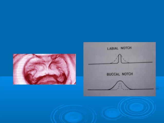 Labial vestibuleLabial vestibule Extends from labial frenumExtends from labial frenumto buccal frenum.to buccal frenum. ...