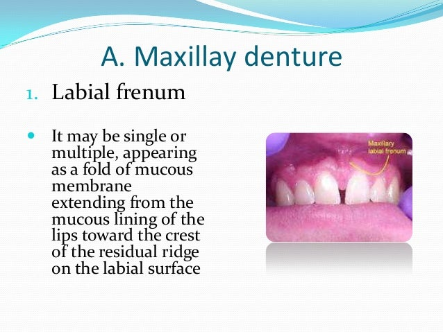 Buccal frenum  It is a fold or folds of  mucous membrane that extends from the mucous membrane reflection area to the cre...
