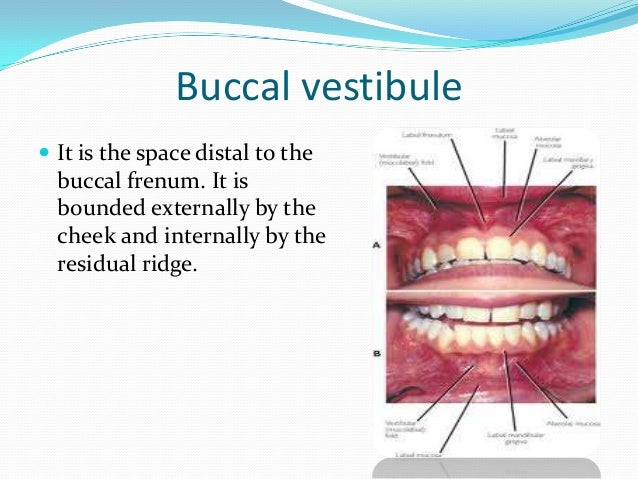 Vibrating line of the soft palate  The extension of the  posterior palatal border of the upper denture depends on the fun...