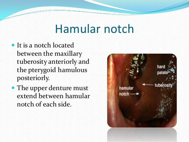 B- Mandibular denture Labial frenum  It is a fold of mucous  membrane that connects the mucosa of the lower lip to that o...