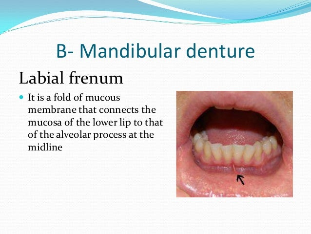 Buccal frenum  This is a fold of mucous  membrane in the premolar area attaching the lip to the alveolar ridge.