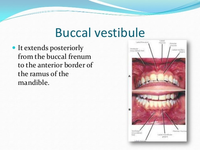 Palatoglossal arch  It is formed by the  palatoglossus muscle, over extension of the distolingual border of the lower den...