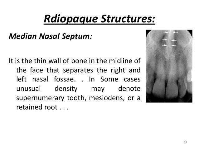 anatomical landmarks of mandible pdf
