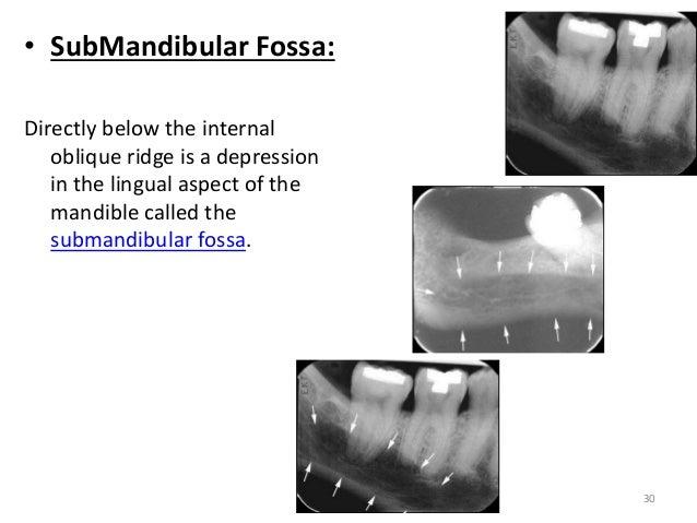 Anatomical landmarks in Periapical and Orthopantomogram X-ray
