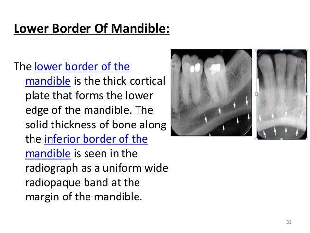 anatomical landmarks in periapical and orthopantomogram x