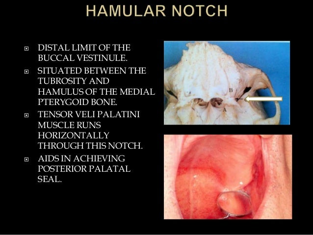  DISTAL LIMIT OF THE BUCCAL VESTINULE.  SITUATED BETWEEN THE TUBROSITY AND HAMULUS OF THE MEDIAL PTERYGOID BONE.  TENSO...