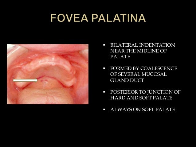  BILATERAL INDENTATION NEAR THE MIDLINE OF PALATE  FORMED BY COALESCENCE OF SEVERAL MUCOSAL GLAND DUCT  POSTERIOR TO JU...