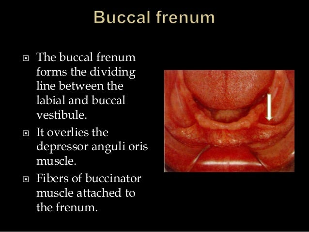  The buccal frenum forms the dividing line between the labial and buccal vestibule.  It overlies the depressor anguli or...