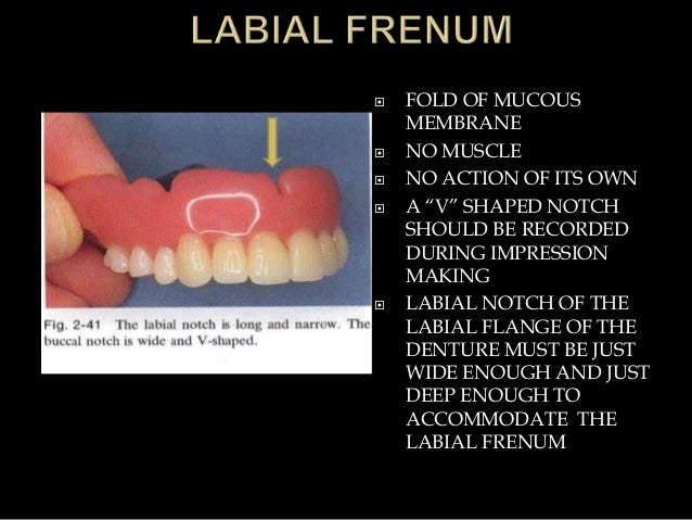 """ FOLD OF MUCOUS MEMBRANE  NO MUSCLE  NO ACTION OF ITS OWN  A """"V"""" SHAPED NOTCH SHOULD BE RECORDED DURING IMPRESSION MAK..."""