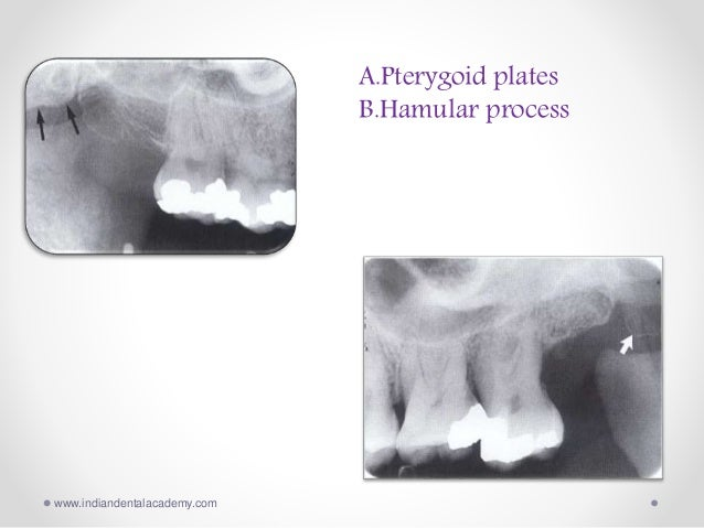 Anatomic radiopacities / dental implant courses