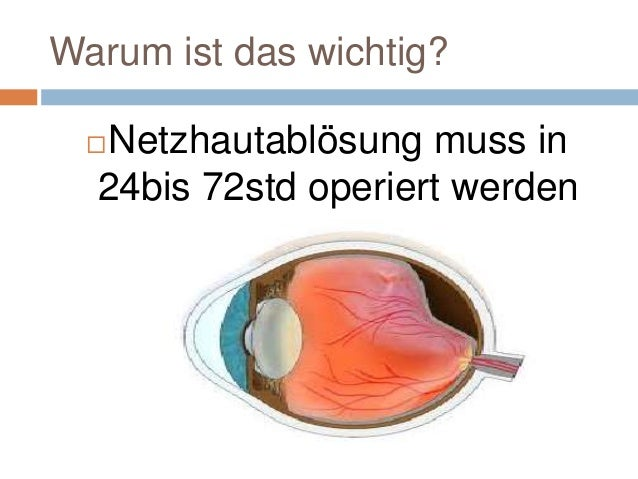 Anatomie,glaukom