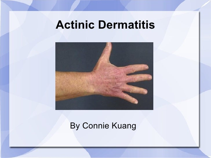 Actinic Dermatitis By Connie Kuang