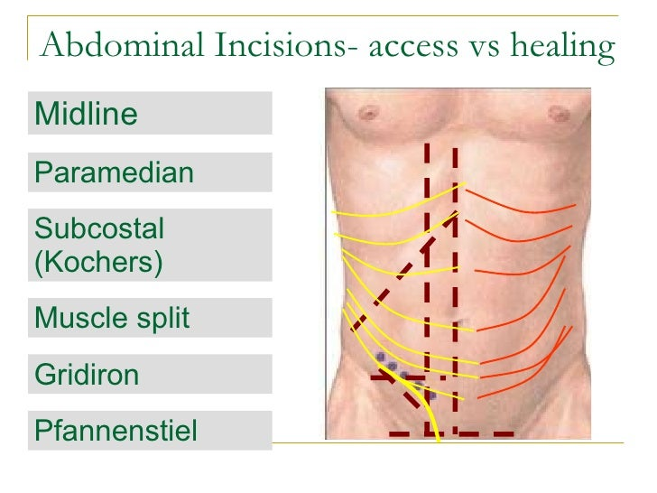 Principle Of Abdominal Anatomy as well 10501617 Who First Described Addisons Disease together with Male Internal Organs Diagram also 9659771 as well Thyroid Gland 37751416. on endocrine glands location