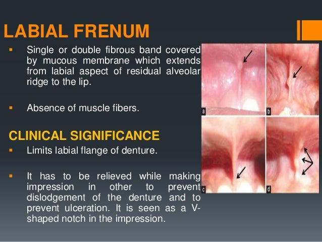 LABIAL VESTIBULE  It extends from buccal frenum on one side to the other, being divided into right and left by labial fre...