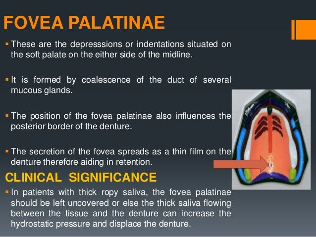 HARD PALATE  It is formed by palatine shelves of the maxillary bone and the premaxilla.  Lined by keratinised epithelium...