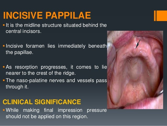 FOVEA PALATINE  Bilateral indentations near the midline of palate. Posterior to junction of hard and soft palate  These ...