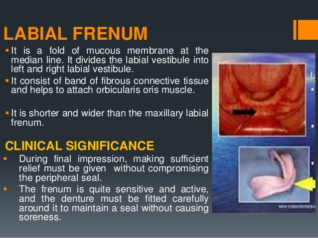 BUCCAL FRENUM  The buccal frenum forms the dividing line between the labial and buccal vestibule.  May be single or doub...