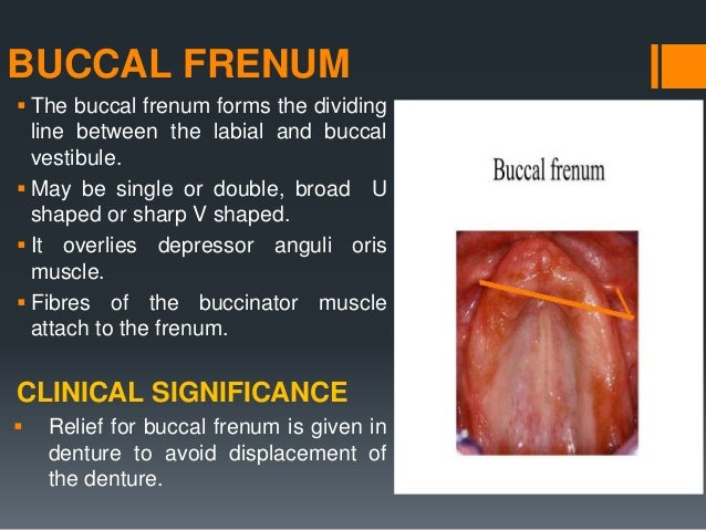 LINGUAL FRENUM  It is a fold of mucous membrane existing when the tip of the tongue is elevated.  It overlies the geniog...