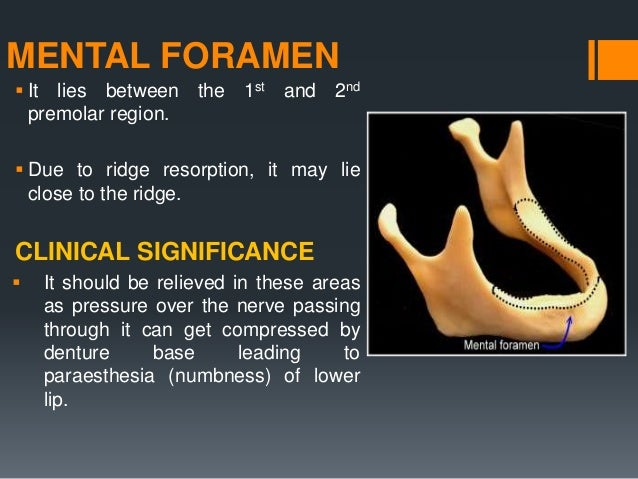 MYLOHYOID RIDGE  The mylohyoid ridge is a bony prominence along the lingual aspect of the mandible  Soft tissue usually ...