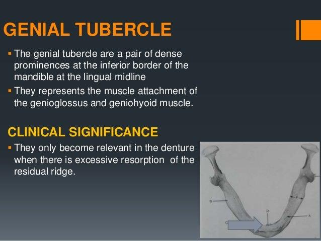 MANDIBULAR TORI  These are the abnormal bony prominence found bilaterally on the lingual side, near the premolar region b...