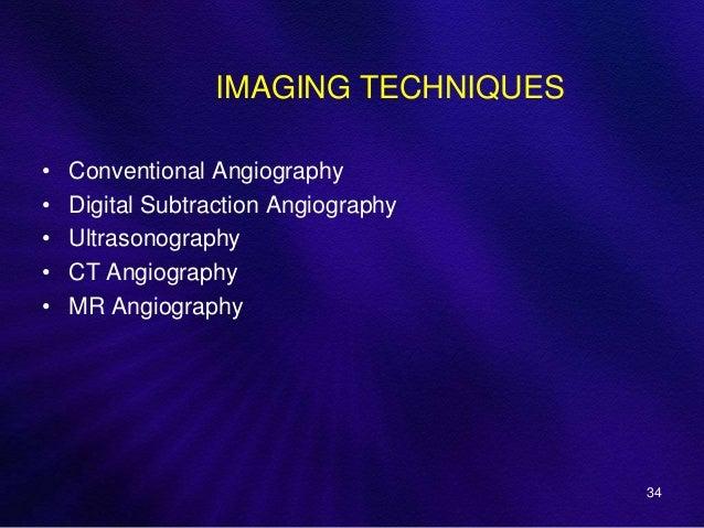 Motor Vessal Amizad: Anatomy And Intervention In Cerebral Vasculature