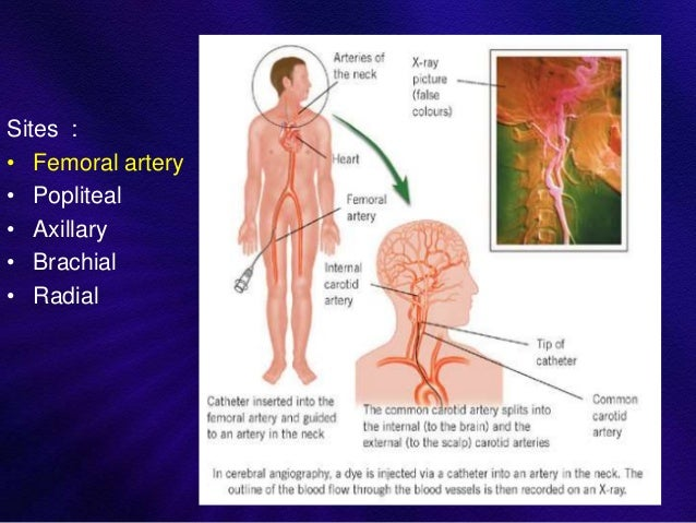 Anatomy and intervention in cerebral vasculature