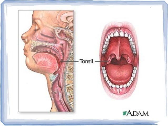 palatine tonsils - Akba.greenw.co