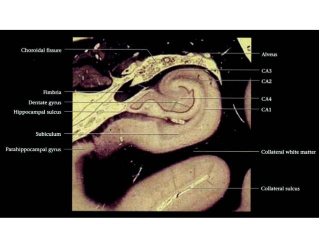 Anatomy of hippocampus ( radiology )