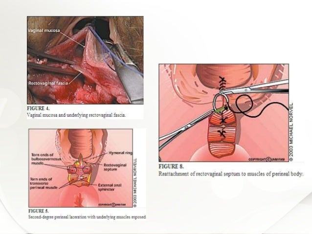 Anatomy of anal sphincter and perineal body