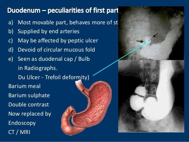Anatomy Of Duodenum 23988872