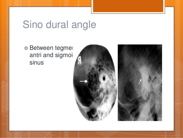 Fancy Sinodural Angle Anatomy Crest - Anatomy And Physiology Biology ...