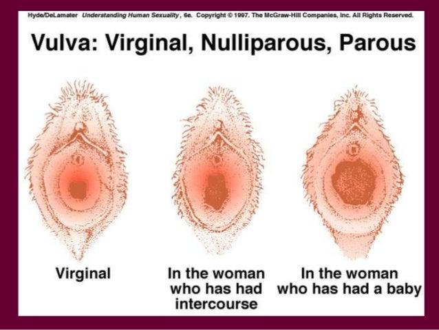 Vagina changes